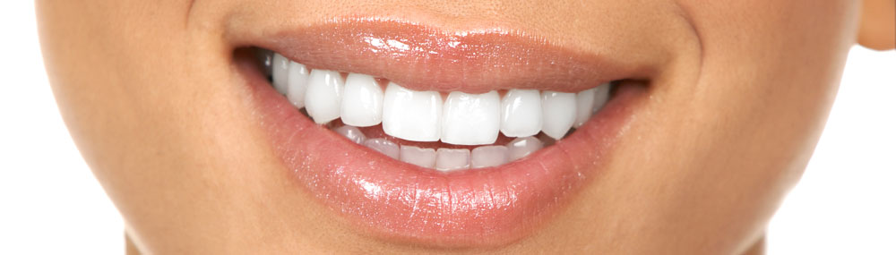 Teeth whitening Dan Dube Dentist Wilmington NC